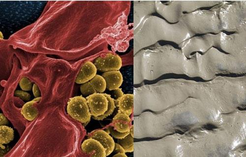 Đột phá trong y học hiện đại: chế tạo thuốc kháng sinh từ bùn đất